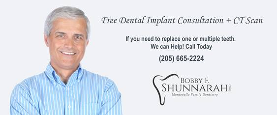 Free Dental Implant Consultation + CT Scan
